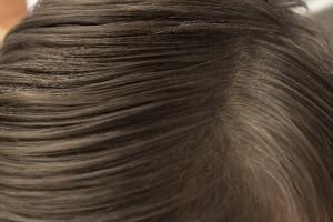 白髪の改善方法