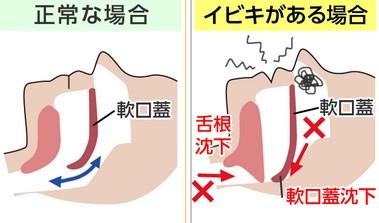 鼻づまりが口呼吸といびきの原因に