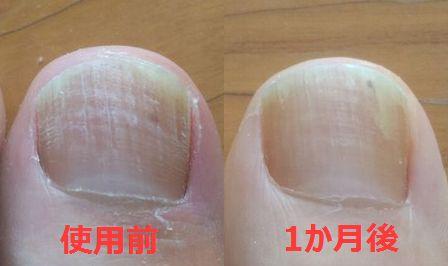 親指の爪水虫治療前~1か月後の変化