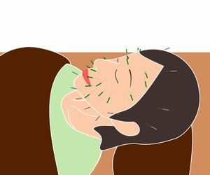 美容鍼で効果を感じやすい症状と持続時間、内出血のリスクなど