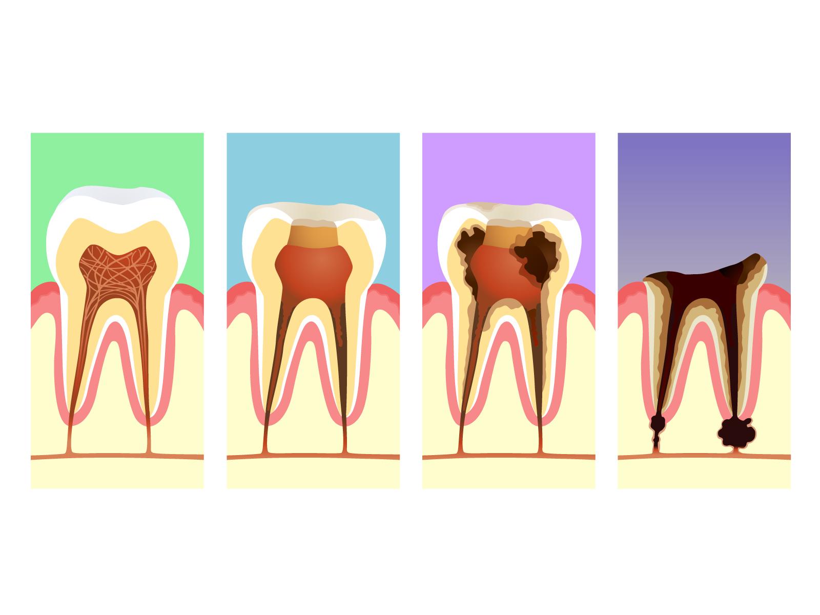 歯の根っこ炎症