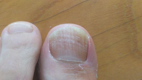 親指の爪水虫治療前