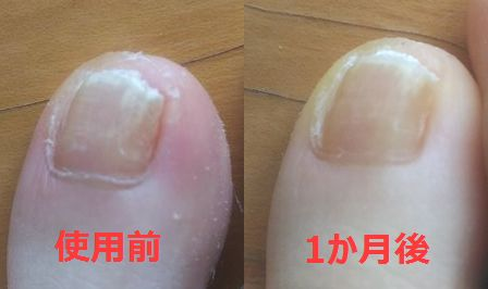 薬指の爪水虫治療前~1か月後の変化