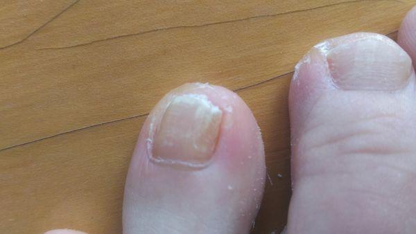 薬指の爪水虫治療前